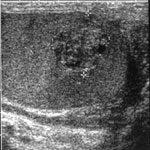 Testicular lump | The British Association of Urological
